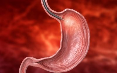 What is an Upper GI Endoscopy?